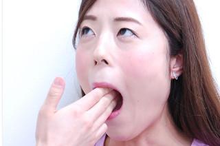 美容鍼の口コミと評判