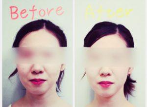 美容鍼のビフォーアフター写真