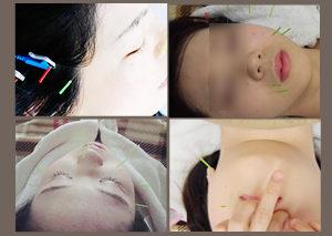横浜・桜木町の美容鍼・美顔鍼の実際写真