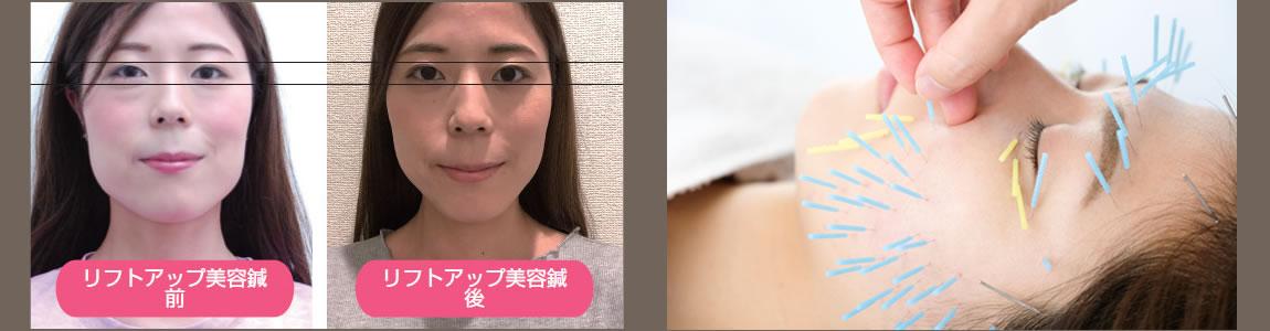 横浜、桜木町の美容鍼、ビフォーアフター