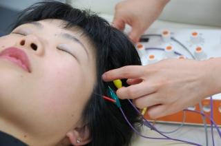 電気を通す美容鍼